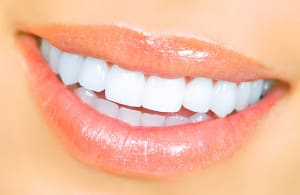 How Clear Braces Can Improve Your Smile