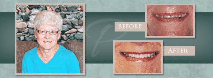 dentist in omaha, nebraska smile gallery